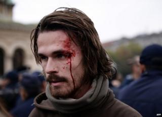 Injured protester in Sofia, 12 November (photo by Anna Stambolieva)