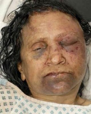 The attack victim