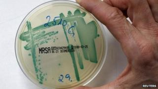 A MRSA (Methicillin resistant Staphylococcus Aureus) bacteria strain is seen in a petri dish containing a special jelly for bacterial culture in a microbiological laboratory in Berlin 1 March 2008