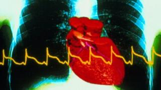Heart with heart attack trace superimposed