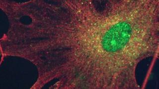 Research into brain tumours