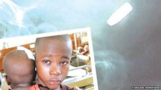 A photo of Satrin Osinya holding onto his brother Moses Gift in Mombasa on 25 March 2014 - and an X-ray of the bullet