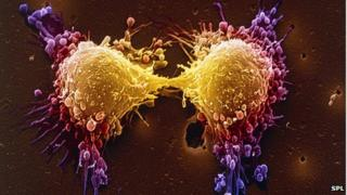 Prostate cancer cells dividing