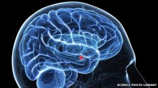 Brain image showing a key area for autism, the amygdala (shown in red)