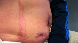 Burn on Paul Hill's stomach