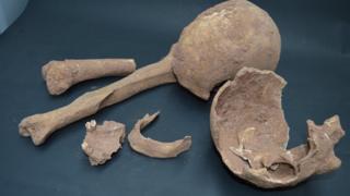 Fragments of the skulls and bones