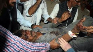 A bus accident victim at a hospital in Shimla on 30 July 2014