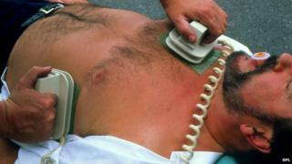 Picture of defibrillation after cardiac arrest