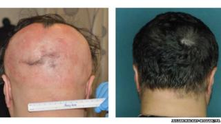 Alopecia can lead to patchy or complete hair-loss