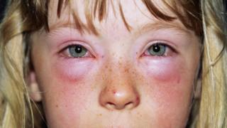 Child with unknown allergy