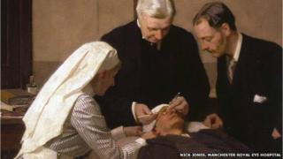Early eye operations were performed with no anaesthetic