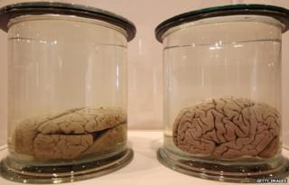 Preserved brains seen in London, England, on 27 March 2012