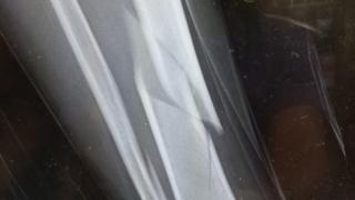 Paul Dallimore's x-ray