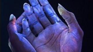 Bacteria on hands seen in ultraviolet light (SPL)