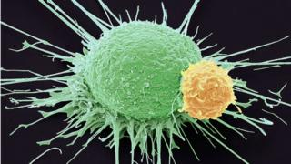 Prostate cancer and immune cells