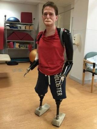Alex wearing his four prosthetics