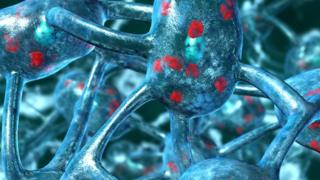 Parkinson's and neurons