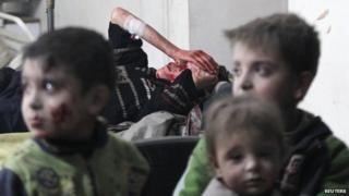 Injured children rest in a field hospital near Damascus on January 25, 2015