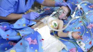 Child after heart surgery