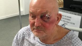 John Jukes, mugged on 31 March, Cheltenham