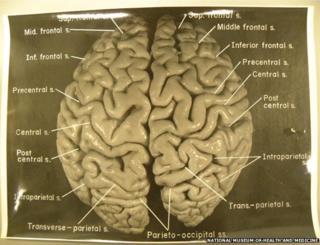 Original photos of Einstein's brain