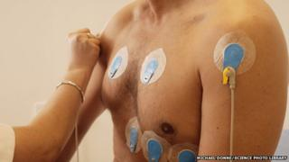 Heart screening includes looking at the electrical activity of the heart