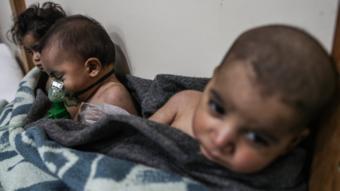 أطفال مصابون في الغوطة الشرقية