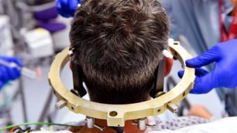 مريض حول رأسه أقطاب كهربائية