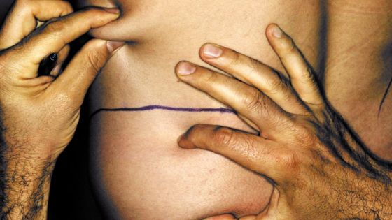 Doctors warn of rare but serious liposuction complication