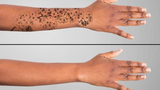 Comparación de un brazo con tatuaje y otro sin tatuaje.