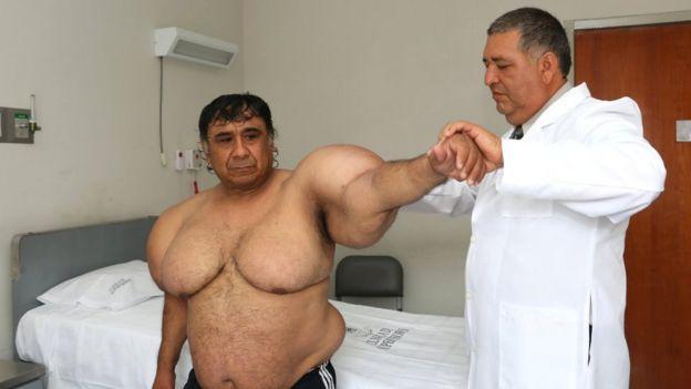 Willy en el hospital, siendo revisado por el médico
