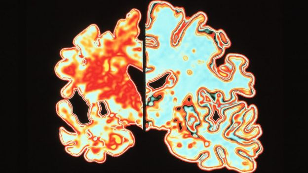 Cerebro con enfermedad de Alzheimer, a la izquierda, comparado con un cerebro sano, a la derecha.