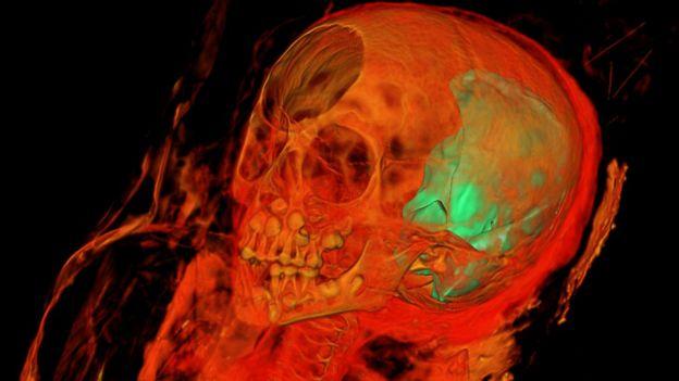 Cráneo de una momia