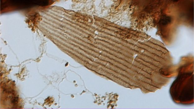 Una de las escamas bajo el microscopio