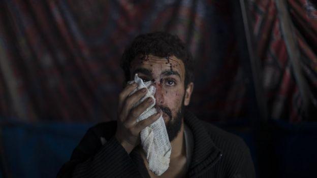 Homem ferido com gaze no olho