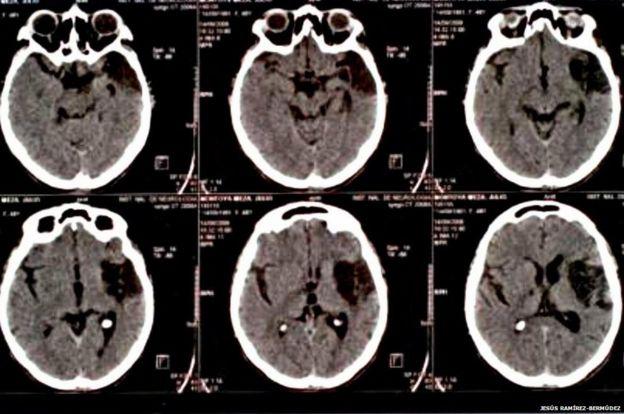 Danos no cérebro de um paciente com a síndrome