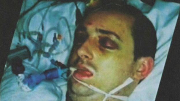 Paul Pugh en el hospital tras haber sido brutalmente golpeado en la calle en 2007.