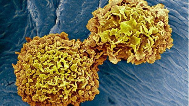 کیسنر کے خلیے