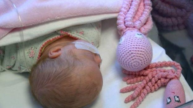 Bebé prematuro con un pulpo de calceta