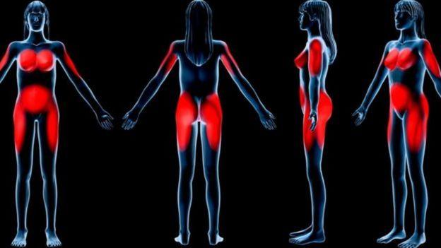 Desenho mostra gordura em corpo feminino