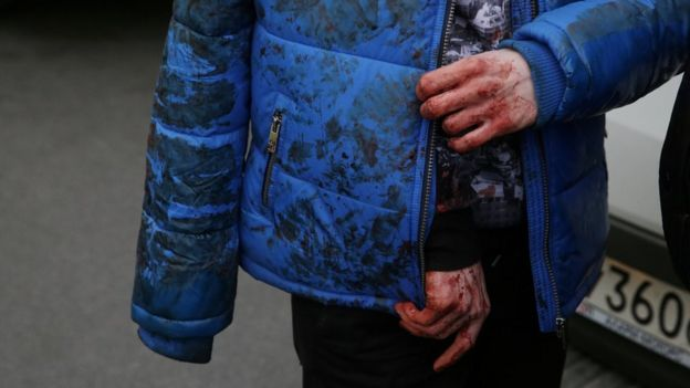 An iniured person walks outside Sennaya Ploshchad metro station, following explosions in two train carriages at metro stations in St Petersburg, Russia April 3, 2017