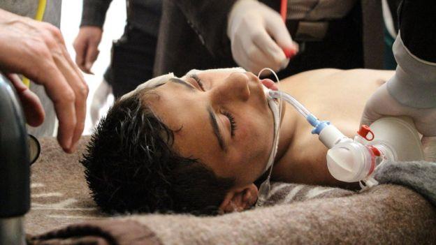 Un niño con respirador luego del ataque con supuestas armas químicas.