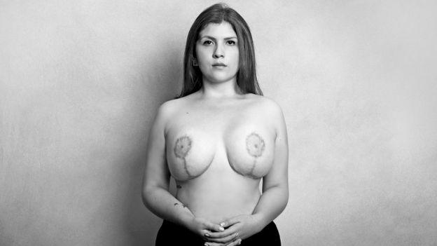 Lorena Beltrán mostrando las cicatrices de sus operaciones en los pechos. Foto cortesía de El Espectador.