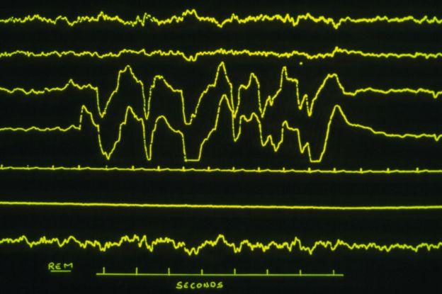 Ondas de electroencefalograma de un paciente en sueño MOR