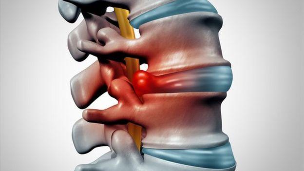 Una imagen de una hernia discal