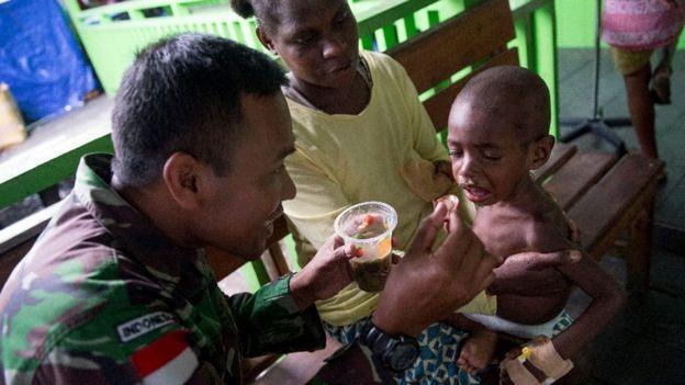 Criança desnutrida é alimentada por membro do exército