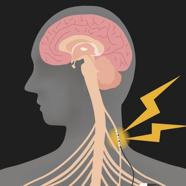 Ilustración del vago enviando señales al cerebro