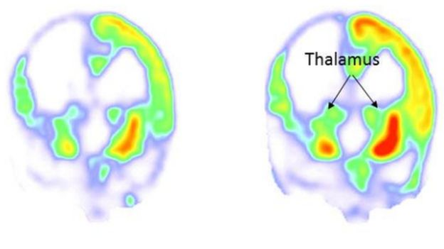 Escáneres cerebrales