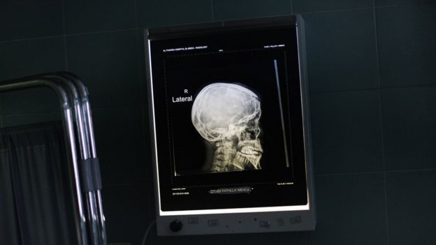 Raio-x de um crânio