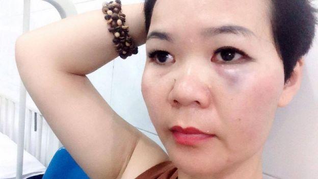 Bà Lê Mỹ Hạnh nói bà đã làm việc với công an quận 2 TPHCM